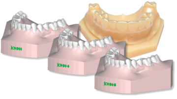 DENTAL SOFTWARE ORTHOSTUDIO 3D