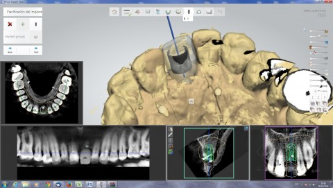 blueskyplanIMPLANT SOFTWARE