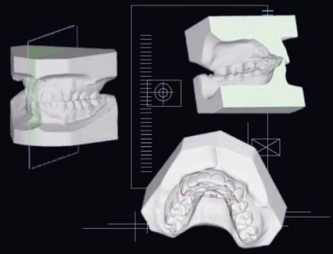 Nouveaux systèmes 3D